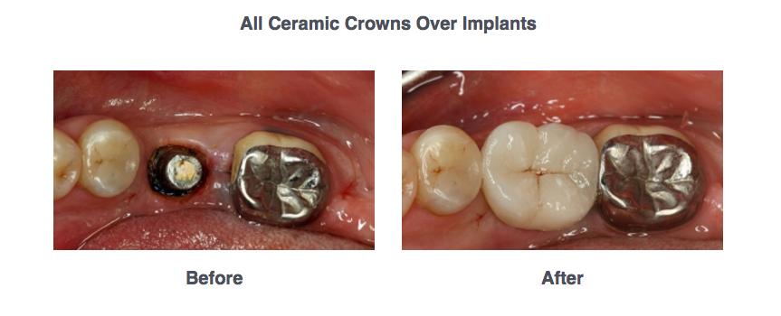 Dental Implants BnA